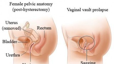 Gynecology and STDs