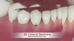 General Dentistry in 3D