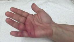 Infected Dog Bite to the Hand