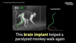 Wireless brain implant