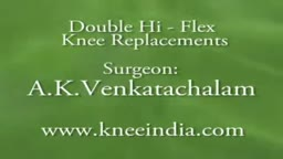 Bilateral knee replacements UK  patient experience with Dr.Venkatachalam