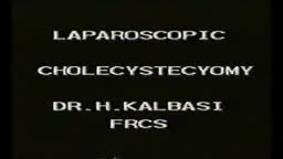 Laparoscopic Cholecystectomy Surgery Video