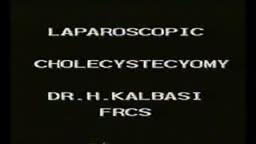 Laparoscopic Cholecystectomy Surgery Video