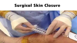 Surgical Skin Closure
