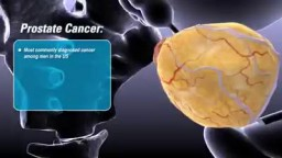 What is Prostate Cancer ?
