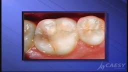 Dental Problems Diagnosis