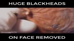 Huge BlackHead