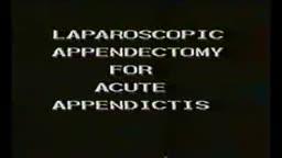 Laparoscopic Appendectomy