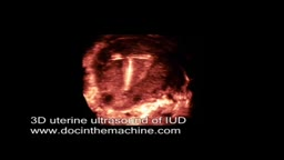 3D ultrasound of IUD in uterus