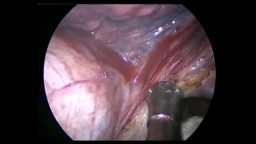 Left Lower Lung  Lobectomy