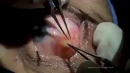 Eyeball cyst Removal