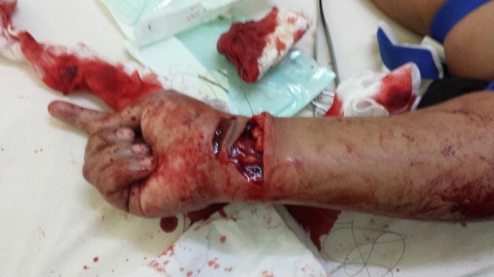 how to stop bleeding on implanon