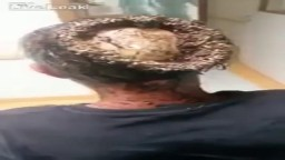 Unbelievable Head Infection Exposing a Man's Skull