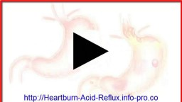 Acid Reflux Home Remedies, Acid Reflux Shortness Of Breath, Heartburn Nausea Fatigue, Acid Reflux