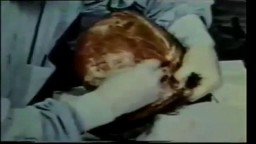 Medical Videos - Human Brain Removal During Autopsy