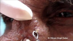 Black and Whiteheads on Nose Removal