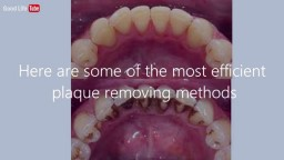How To Remove Teeth Plaque Without Going To The Dentist
