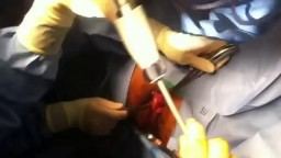 Hemorrhoids Surgical Repairing Operation
