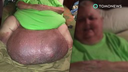 Ingrown hair turns into Horrible 140-pound tumor in man's stomach