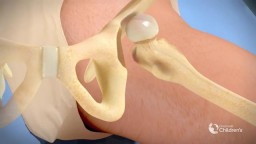 Surgical Treatment for Dysplastic Hip Joint