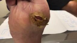 Debridement of Diabetic Foot Ulcer