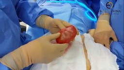 Breast  implant removed with capsule