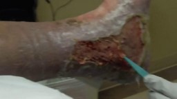 Warning: Diabetic Ulcer Debridement