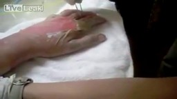 Peeling of Burned skin