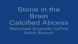 Calcified Brain Abscess