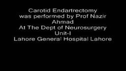 Carotid Endartrectomy