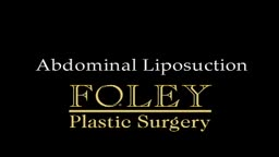 Liposuction for Weight Loss