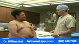 Abdomen Waist Liposuction for Weight Loss
