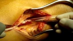 Popliteal embolectomy