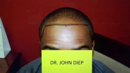 Black Hairline Restoration Lowering by Hair Transplant Surgery
