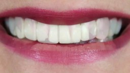 Affordable Dental Veneers!
