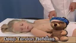 Deep tendon reflexes