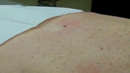 Mole Removal Surgery and Stitches