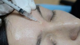 Nevus  removal by radiowave surgery