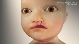 Cleft Lip Repair animation