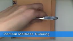 Vertical Mattress Suturing