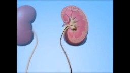 Kidney Stone Treatment - UreteroScopy
