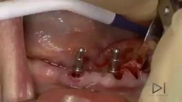 Dental implant surgery!