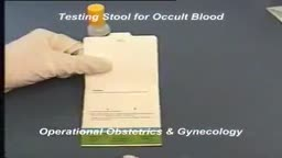 Testing for Occult Blood in the Stool