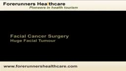 Facial cancer surgery in India can help you to get rid of facial tumors.