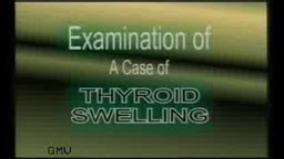Thyroid Swelling