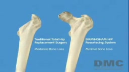 Birmingham Hip Resurfacing Procedure