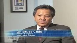 Body by DMC: High Definition Liposuction