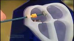Mending Young Hearts: Atrial Septal Defect Repair