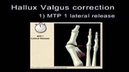 Hallux Valgus Pedis surgery