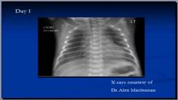 Chest x-ray interpretation, RDS